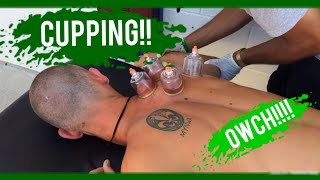 CUPPING!!!