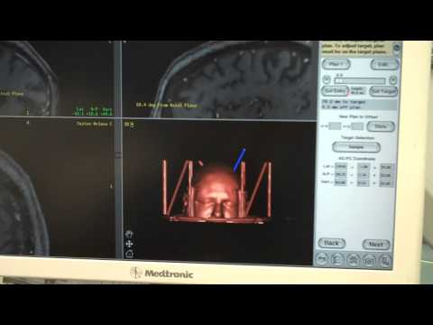 DBS Surgical Planning
