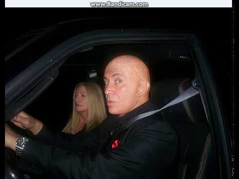 GENE SIMMONS IS BALD?