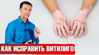 Лечение витилиго. 3 натуральных средства от витилиго.