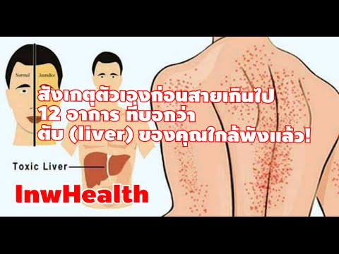 สังเกตุตัวเองก่อนสายเกินไป 12 อาการ ที่บอกว่าตับ (liver) ของคุณใกล้พังแล้ว! [lnwHealth]