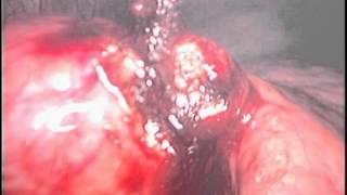 Laparoscopy of Cirrhosis and Liver Biopsies