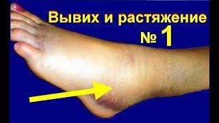 видео Растяжение связок голеностопного сустава: симптомы и лечение