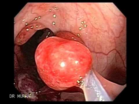 Non Familial Juvenile Polyposis, Polypectomy of Multiple Polyps, First Colonoscopy