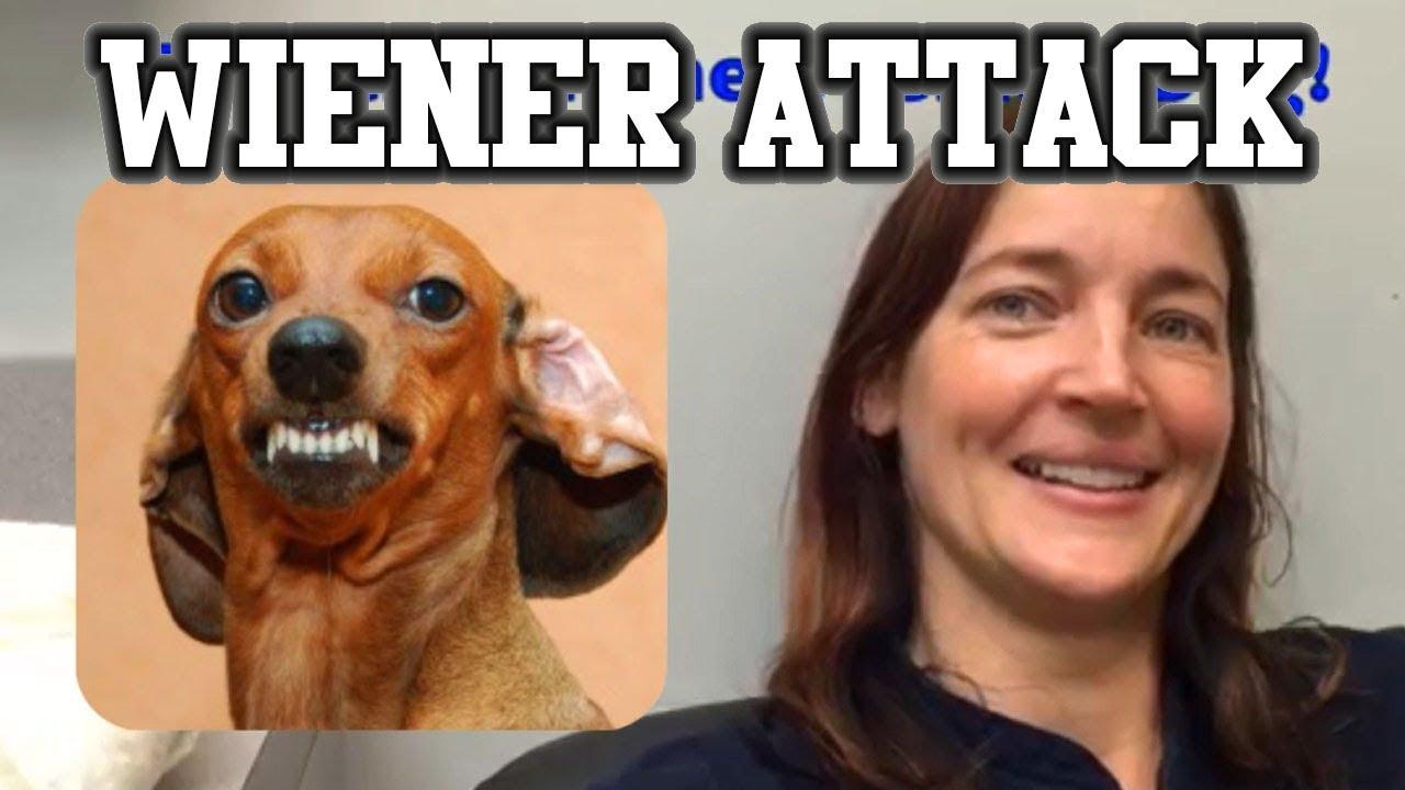 Attack of the Wiener Dog!  Sarah's Cellulitis #1