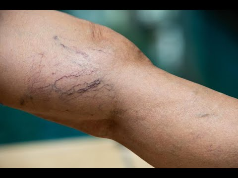 natural-remedies-for-varicose-veins.