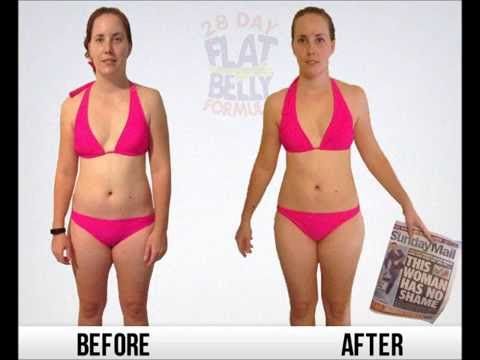 Toning after weight loss skin removal image 4