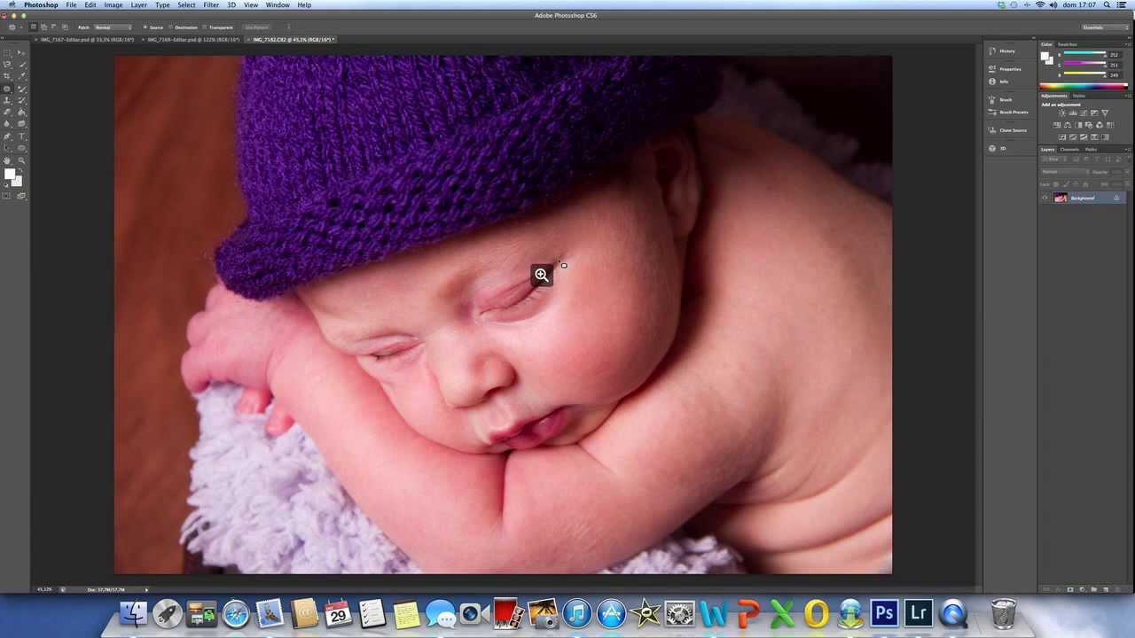 Tratamento Pele Newborn Youtube