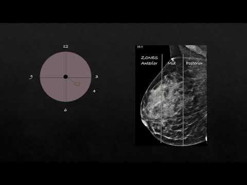 Mammogram - Dr. Avni Skandan