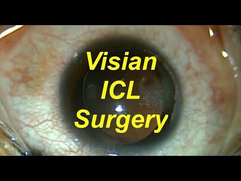 Visian ICL implantable contact lens and bioptics 5-16-11. Shannon Wong, MD