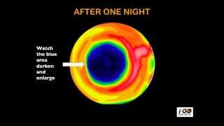 HOW DOES OVERNIGHT VISION CORRECTION WORK?