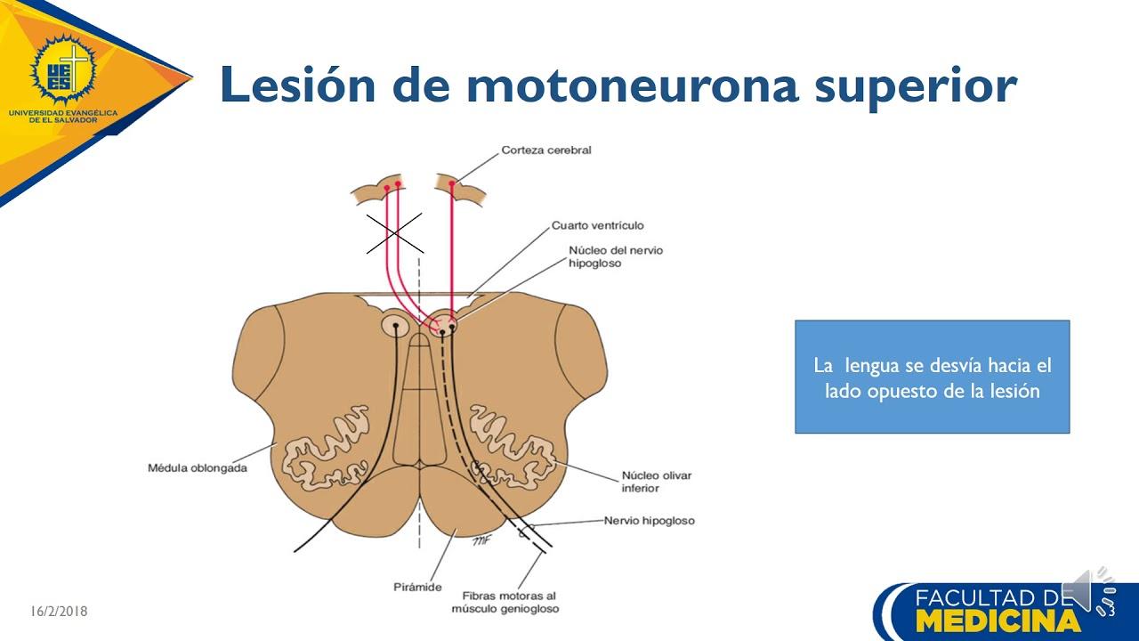 Trastornos de neurona motora superior e inferior con respecto al XII ...