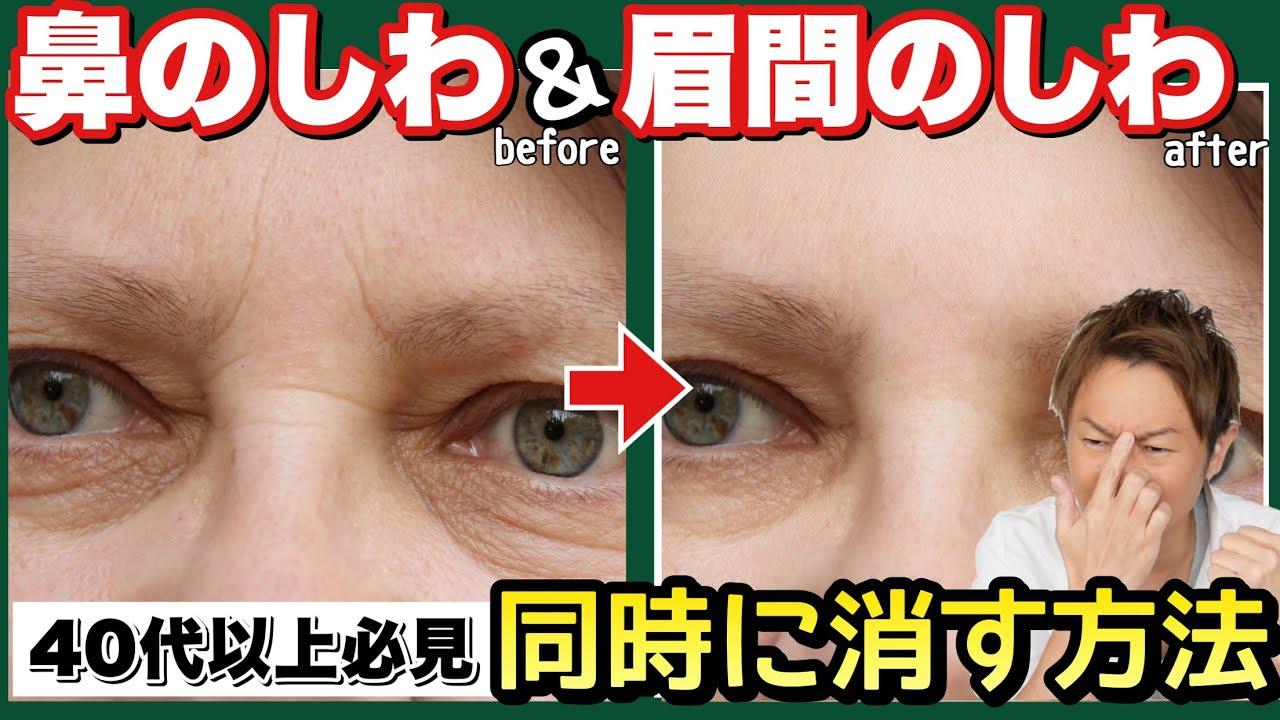 の しわ 眉間 指1本でほぐすだけ!眉間のシワを消す方法とは?
