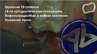 видео удаление ретинированного зуба