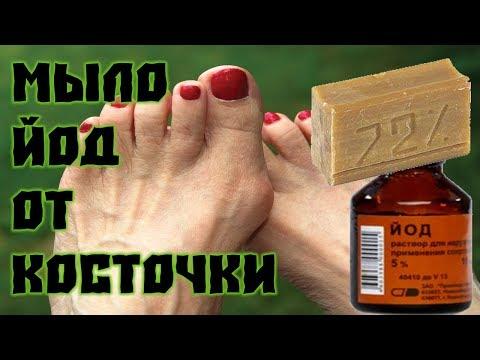 Хозяйственное мыло и йод от косточки на ноге!!!