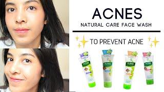 Acnes Facewash Complete White Baguskah Untuk Kulit Berjerawat