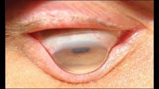 NET. JATIM ** Gangguan Pada Mata Tak Cuma Buramkan Penglihatan, Tetapi Juga Bisa Mengaburkan Masa De.