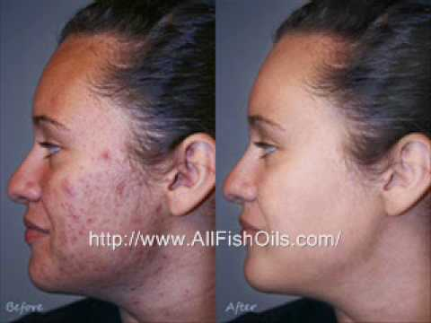 does fish oil help acne youtube