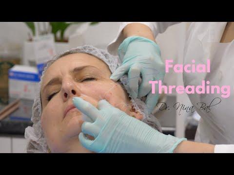 Facial Threads Lift Before and After | Thread Lift Face 💕 Dr. Nina Bal 💕 Facial Sculpting