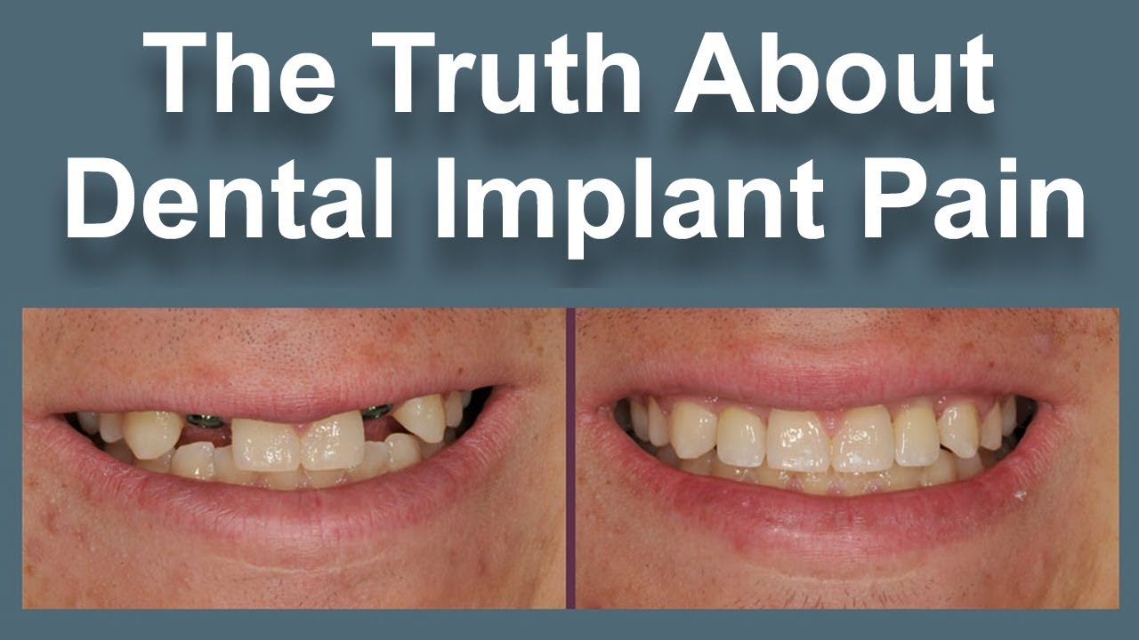 Unknown but effective Dental Implant Recovery Pain