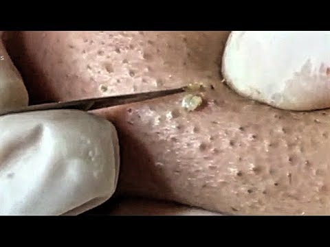 Satisfying Video Face Skin Care Beauty and Relaxing Sleep Music (Part 61)