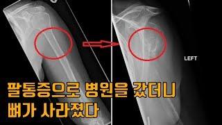 팔통증으로 병원을 갔더니 뼈가 사라졌다?