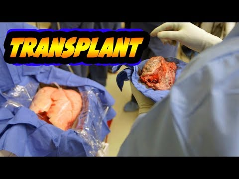 Miracle Lung Transplant Saves Lives!