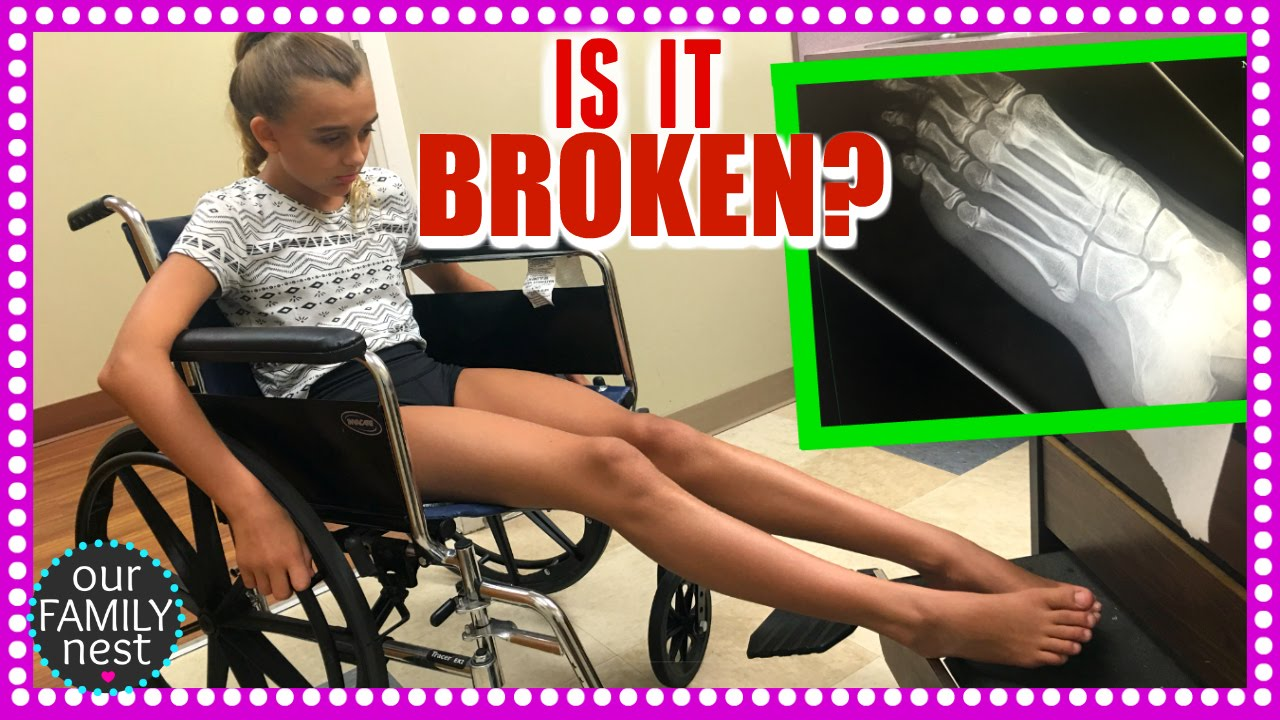 IS IT BROKEN? EMERGENCY X-RAYS! DANCE INJURY :-( - YouTube