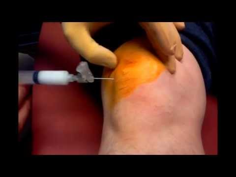 Painfull Cortisone Injection in the Knee OUCHIE!!!!!!!!