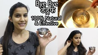 How To : Remove Dandruff Permanently | Result in 1st wash | 100% Natural & Effective