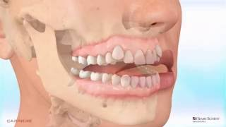 Carriere® Motion™ Appliance for Class III Correction - Patient Education Animation