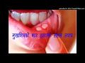 मुखभित्रको घाउ हटाउने सरल उपाय ।। Home remedies for Mouth Ulcers