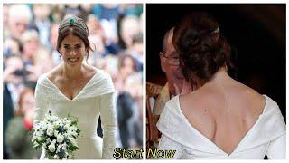 """Prinses Eugenie: """"Ik draag mijn litteken met trots""""/Start Now"""