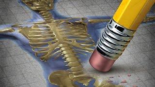 Ménopause : le traitement hormonal substitutif prévient-il de l'ostéoporose ?