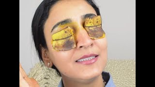 Use this MAGIC home remedy to get rid of dark circles fast!