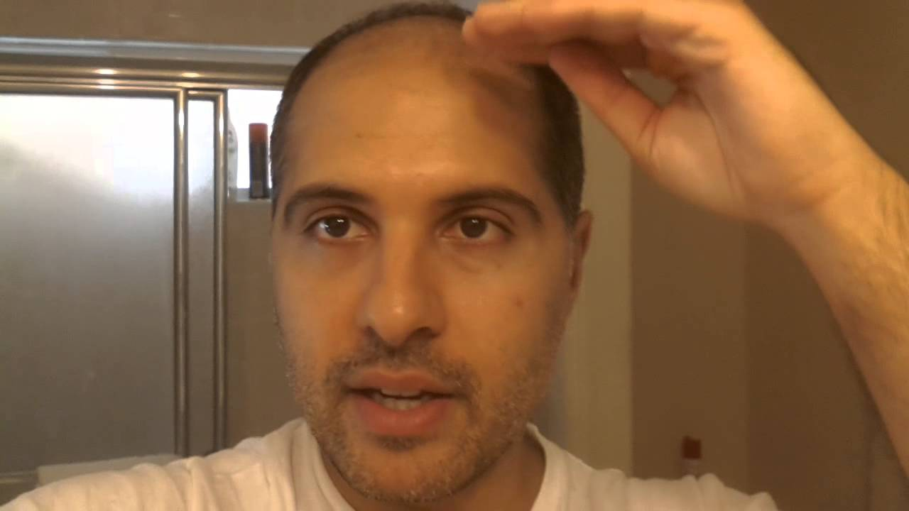 Hair Transplant 2013 Postop 45days After Haircut Youtube