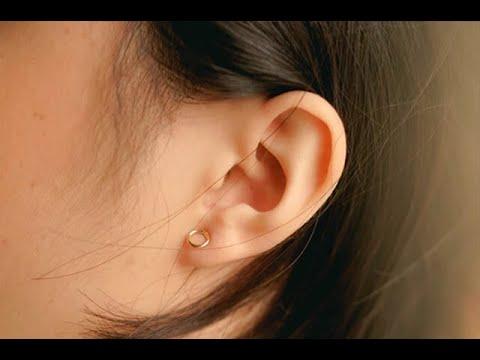 Pueden las orejas obstruidas causar migrañas