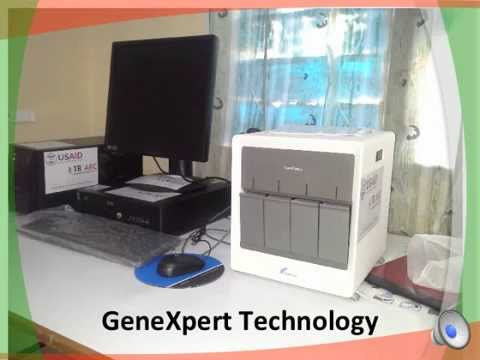 Use of GeneXpert Technology to Enhance Diagnosis of Tuberculosis ...