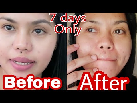 How I got Rid of my MOLE for 7 days Only, very effective Philippines (English)-Helmz Jordan