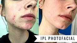 hqdefault - Photo Rejuvenation For Acne Scars