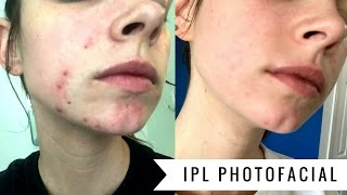 ipl photofacial   before after four weeks