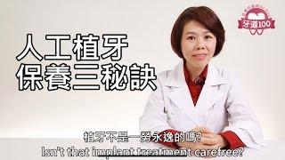 牙道100系列衛教影片《6》 人工植牙用到100歲的三個提案