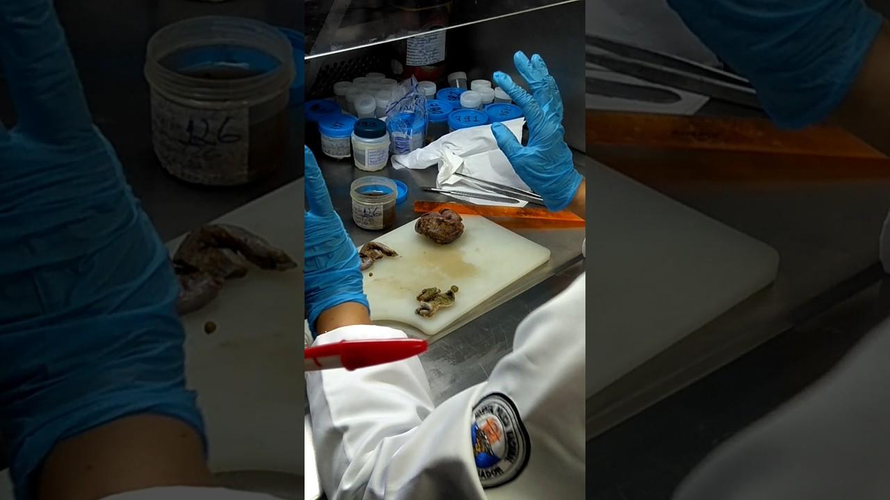 Práctica 2 anatomía patologica G2 UG - YouTube