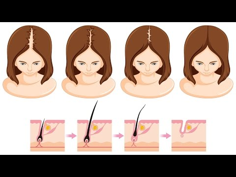 Thumbnail: How to Grow Hair Faster, Thicker and Longer