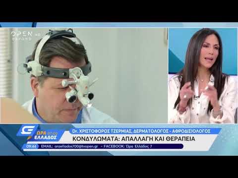 Κονδυλώματα: Απαλλαγή & Θεραπεία | Ο Dr. Τzερμιάς στην εκπομπή 'Ώρα Ελλάδος 7:00'