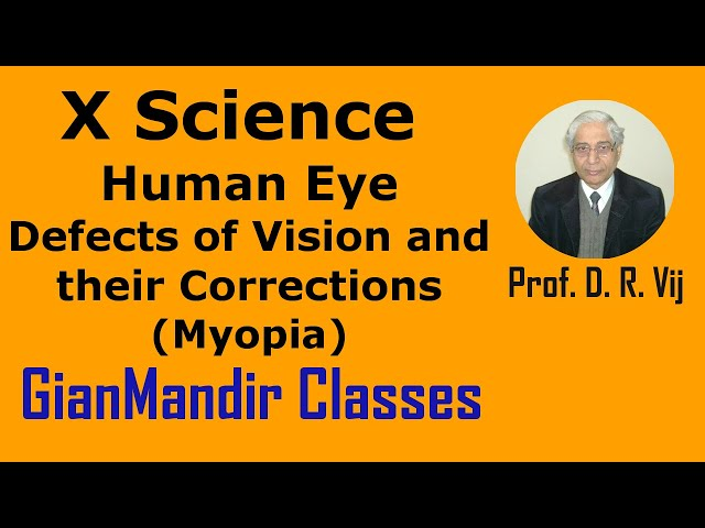 X Science | Human Eye | Defects of Vision and their Corrections (Myopia) by Amrinder Sir