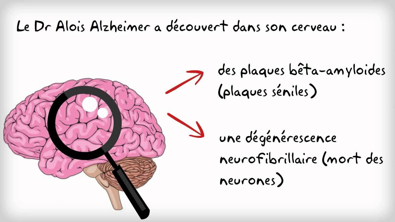 VA 1 Qu'est-ce que la maladie d'Alzheimer ?