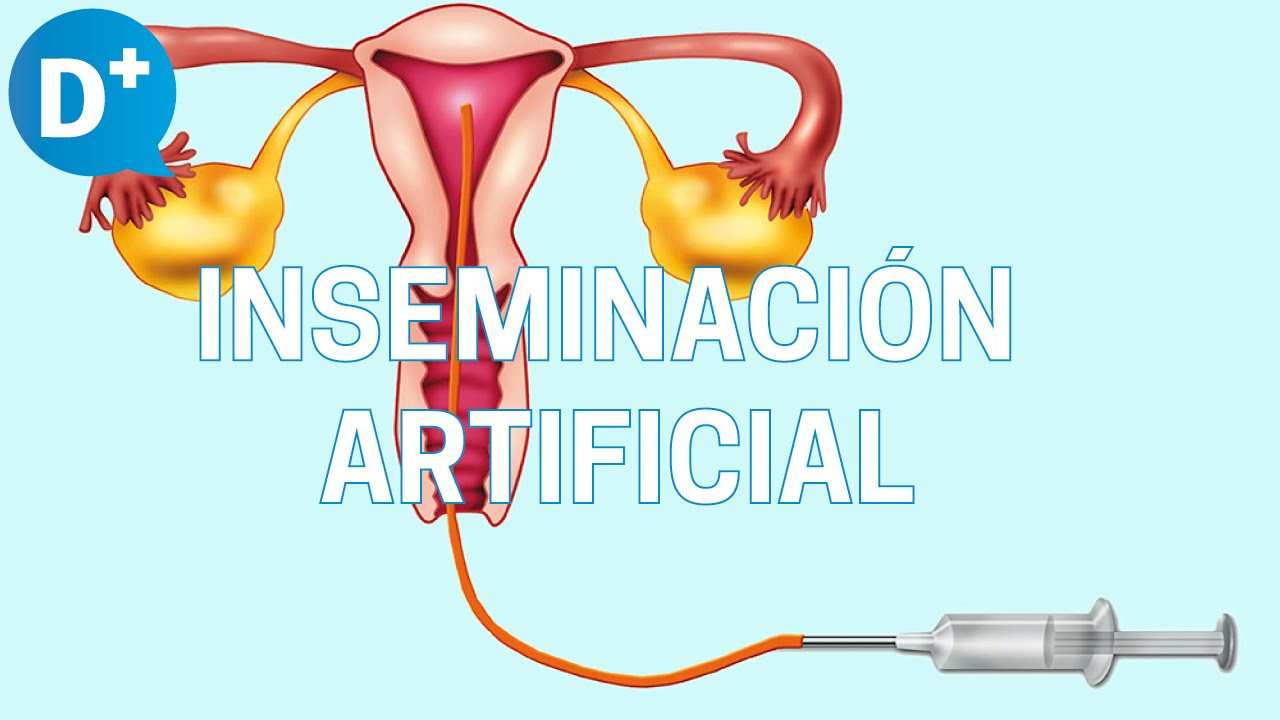 Indicaciones de la inseminación artificial - YouTube