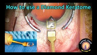 Technique for Diamond Keratomes in Cataract Surgery