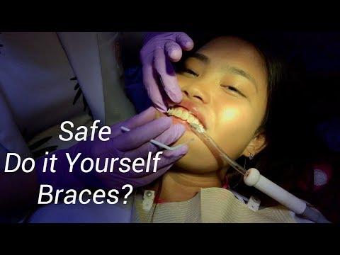 DIY BRACES FOR LESS? (Misconceptions About Ceramic vs. Metal Braces)